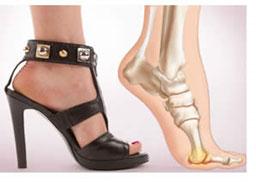 i danni delle scarpe con il tacco