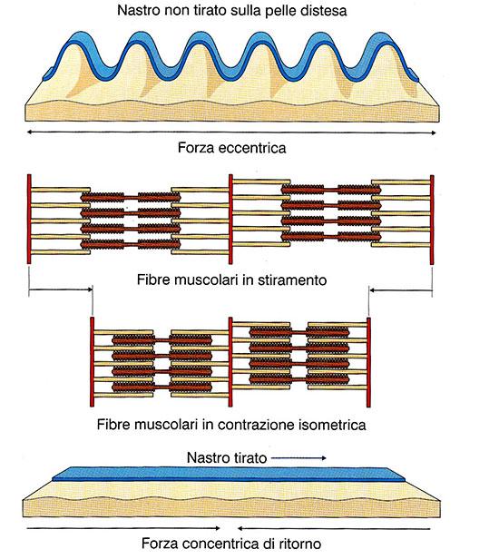 funzionamento del nastro in tensione su muscolo attivo e del nastro non in tensione sul muscolo non attivo