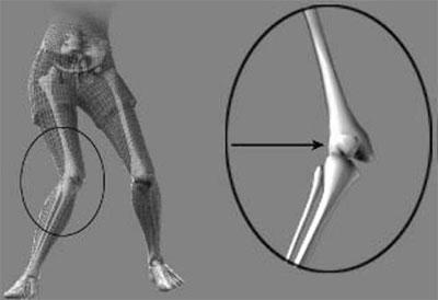 rottura del legamento crociato anteriore (LCA) nella donna