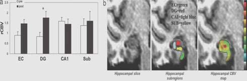 Aumenti del CBV del giro dentato indotti dall'esercizio correlati con neurogenesi