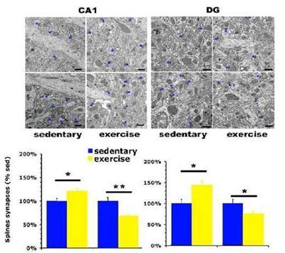 conteggio delle sinapsi delle spine dendritiche dei neuroni del giro dentato (DG) e del settore CA1 dell'ippocampo di ratti sedentari e di ratti esercitati