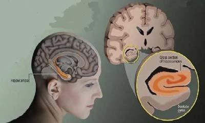 localizzazione anatomica dell'ippocampo