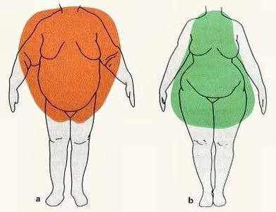 forma a mela dell'uomo obeso e a pera della donna obesa